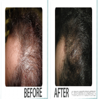 Groei360 before and after
