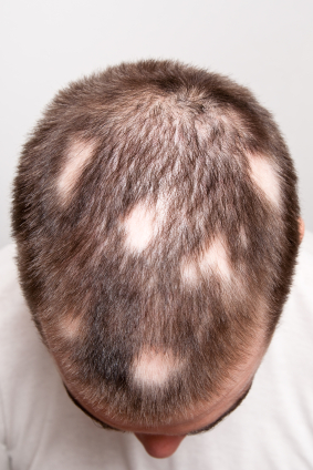 Alopecia Areata: Symptoms, Causes, and Possible Treatments